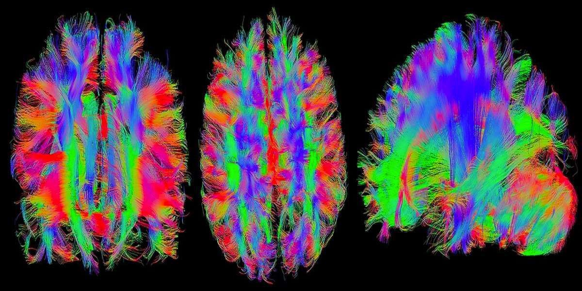 Tensorflow badania mózgu